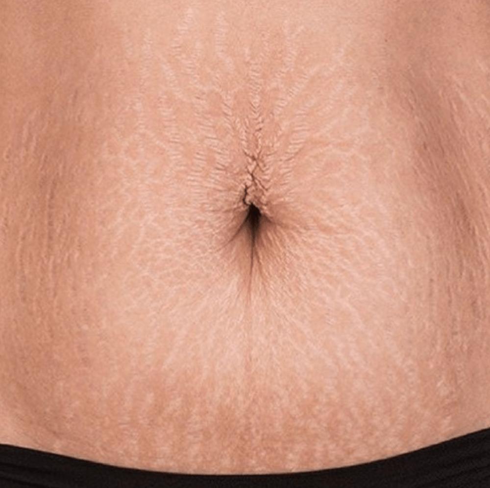 Stretchmarks-on-stomach