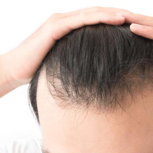 Hairloss 1