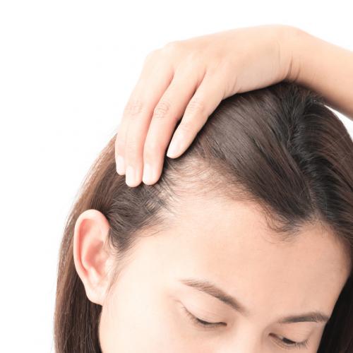 Hairloss 3
