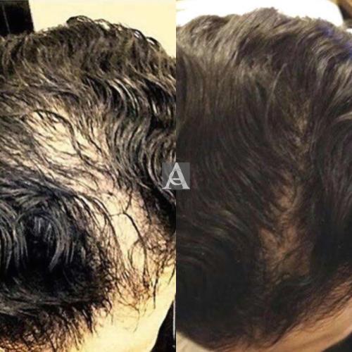 Hairloss 7